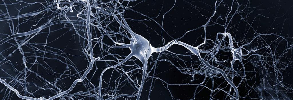 Nevrolgy stor